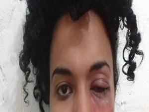 """Me senti nada"", afirma estudante trans violentada na UFPE"